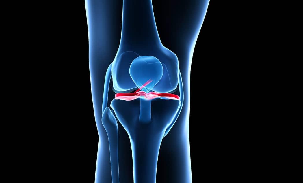 картинка колена человека как многие другие